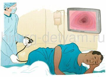 Colonoscopy_procedure